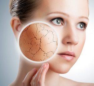 dry & senstive skin